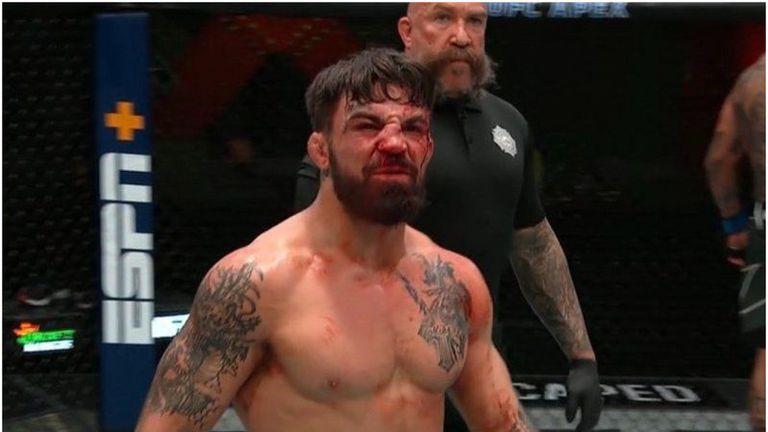 Майк Пери отново пребит и със счупен нос в Лас Вегас
