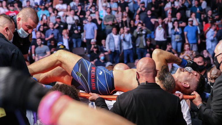 Крис Уайдман счупи крака си по брутален начин на UFC 261 (видео)